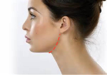 Facelift without surgery with ChinUp #Giveaway #Beauty #ChinUp