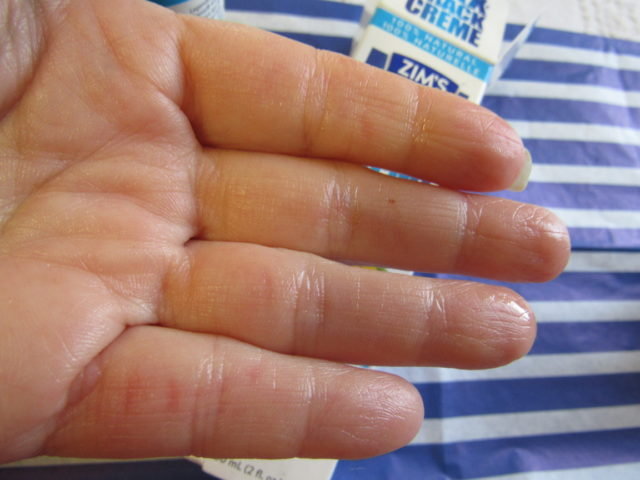 Moderate to Extreme Dry Skin Solutions