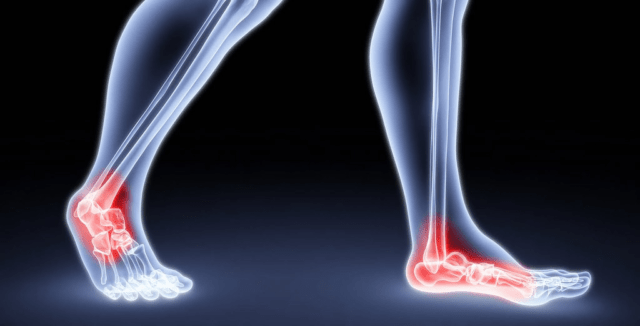 4 Ways To Deal With Joint Pain In Younger People