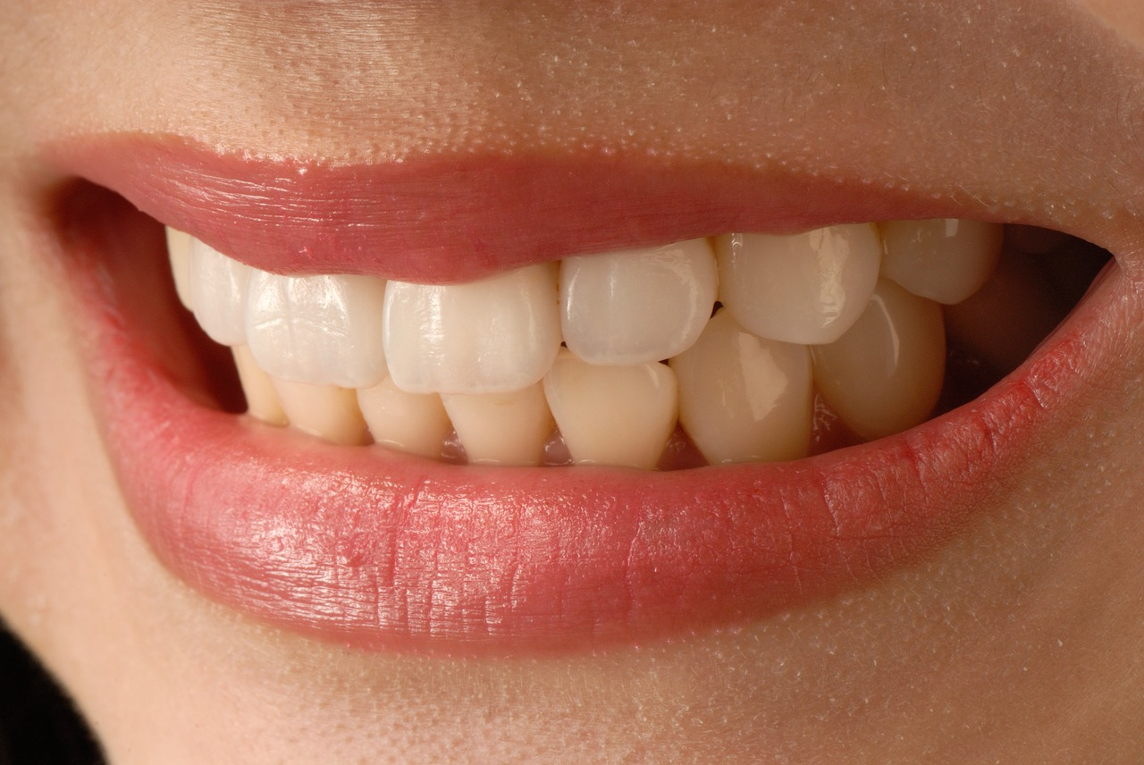 Crowns and Veneers: What Are the Differences?