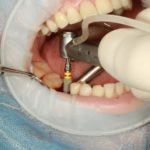 Types of Implants With Dental Care In Queens, New York