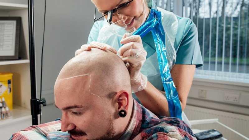Expert Advice For Hairline Tattoos