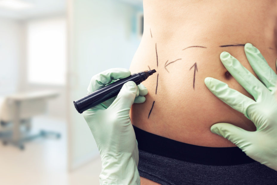 Top Cosmetic Surgeries: 5 of the Most Popular Procedures