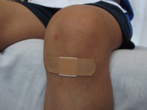 Do Wounds Heal Faster Covered or Uncovered?