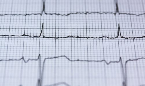 Modern Treatment Options for Atrial Fibrillation