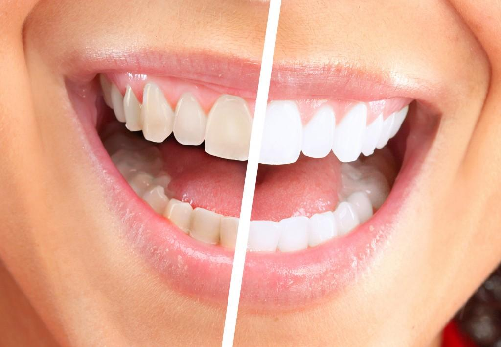 Does Salt For Teeth Whitening Work & Which Other Methods Can You Try?