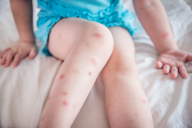 Bed Bug Bites Vs. Scabies: Diagnosis and Treatment Tips
