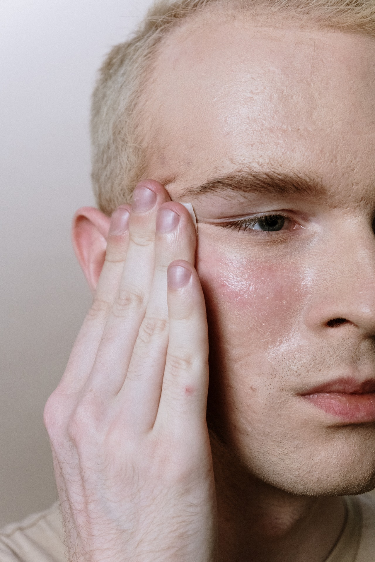 Getting Rid of Acne Scars on Your Skin