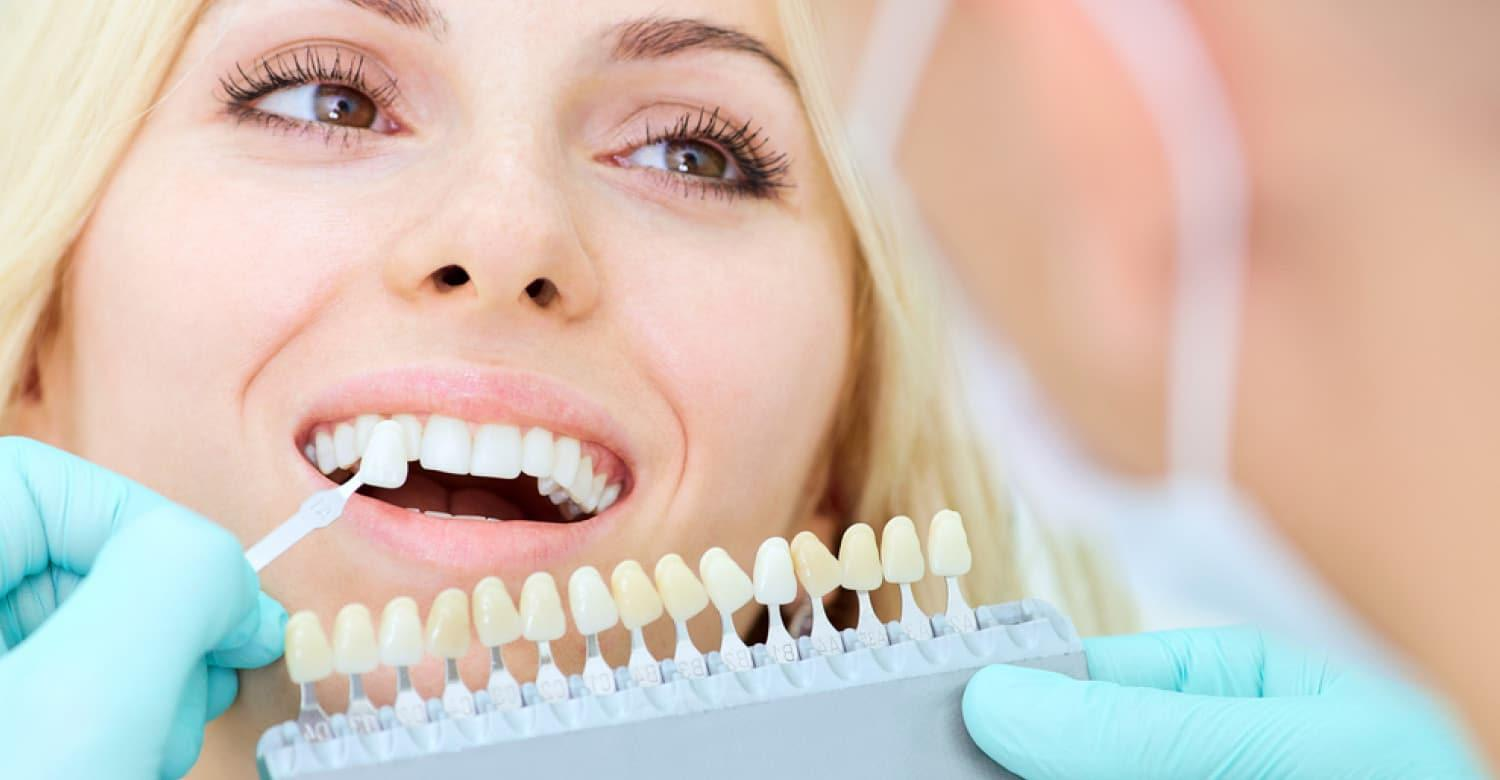 Facts to Know Before Buying A Teeth Whitening Kit