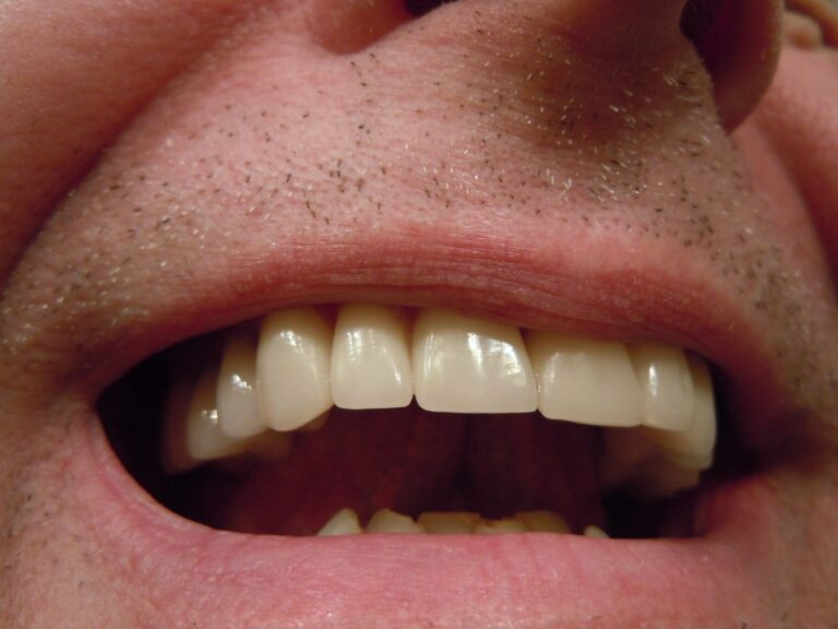 Dental Crowns: CEREC Crowns vs Traditional Crowns