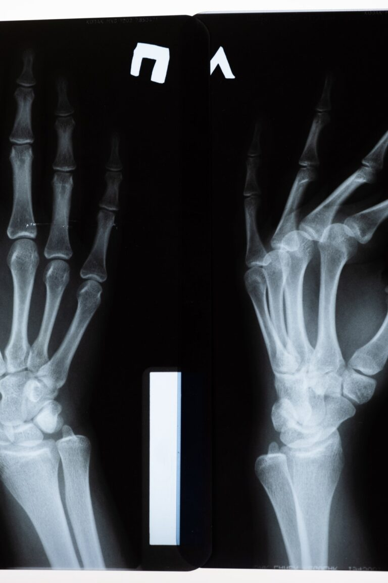 Sports Injury Specialists in Lawrenceville, NJ