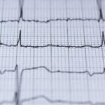 What You Ought to Know About Cardiac Catheterization