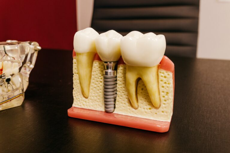 Transform Your Smile with Quality Implants