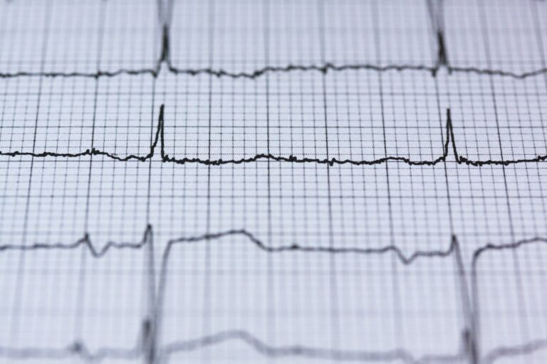 Reasons Your Doctor Might Recommend a Stress Test