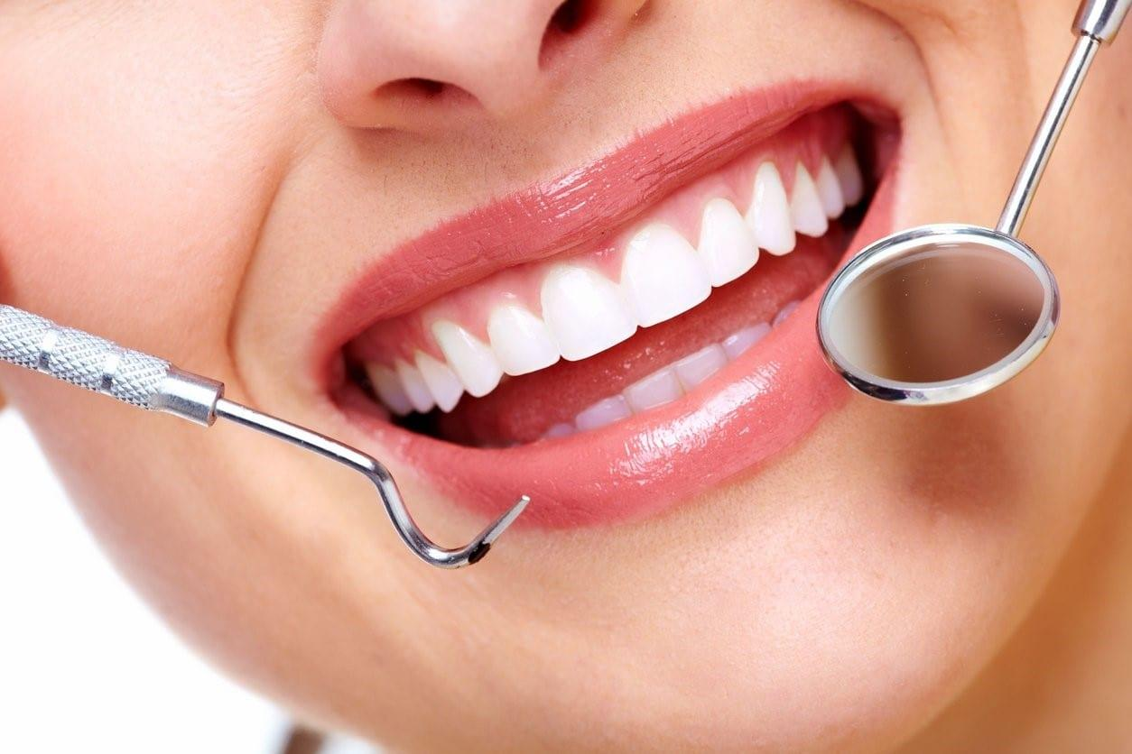 The Beauty of a Smile Makeover Treatment To Boost Your Confidence