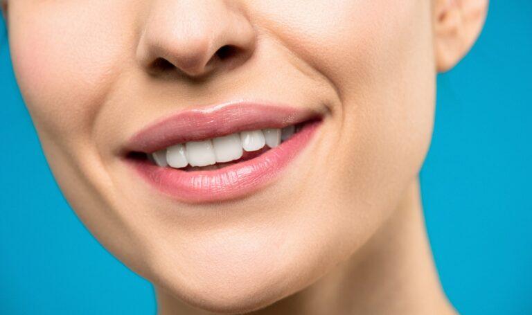 Dental Veneers for Repairing Imperfections on Your Teeth