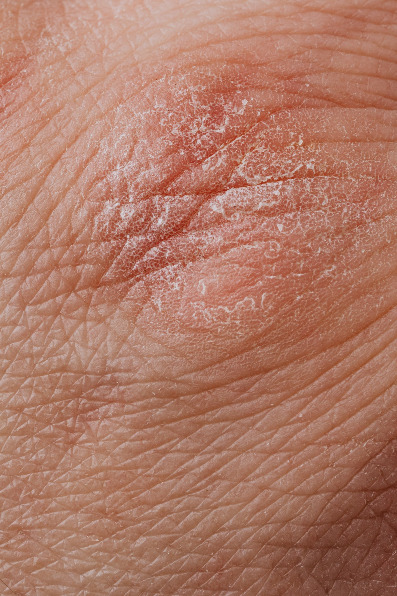 Top-Notch Care For Hives Patients In Arizona
