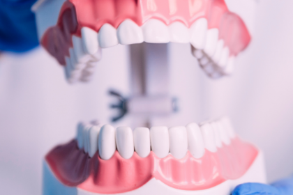 Are You Considering Dental Implants? Learn About Their Benefits