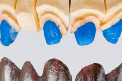 Causes and Benefits of Crowns and Bridges