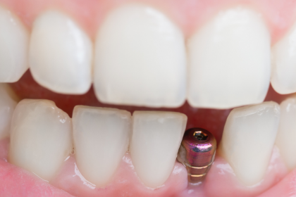 How to Prepare for a Tooth Implant Procedure