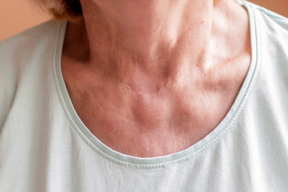 What You May Not Know About Thyroid Surgery