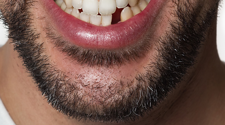 Understanding The Options When You Have Missing Teeth